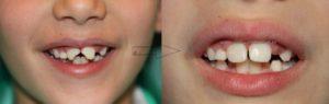Reconstrucción de paletas partidas (incisivos) en niño en la clínica del dr abad en jaén