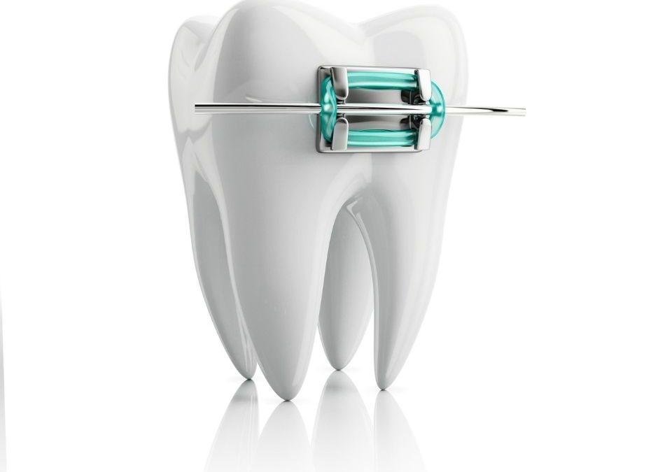 ¿Hasta qué edad se puede poner ortodoncia?