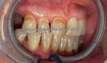 Un ejemplo de odontología conservadora en la clínica dental del Dr Eduardo Abad en Jaén