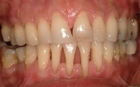 recesiones gingivales atendida en clínica dental dr abad jaén
