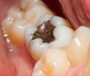 ¿Es necesario cambiar mis empastes de amalgama clínica dental de confianza en Jaén Dr. Abad