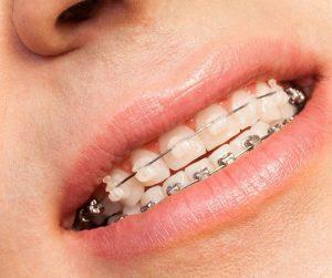brackets autoligado dr abad clinica dental en jaén