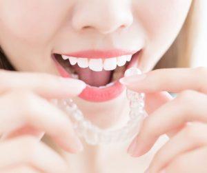 brackets invisible dr abad clinica dental en jaén dentistas