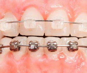 brackets metálicos dr abad clinica dental en jaén
