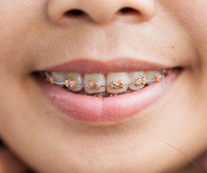 brackets zafiro dr abad clinica dental en jaén